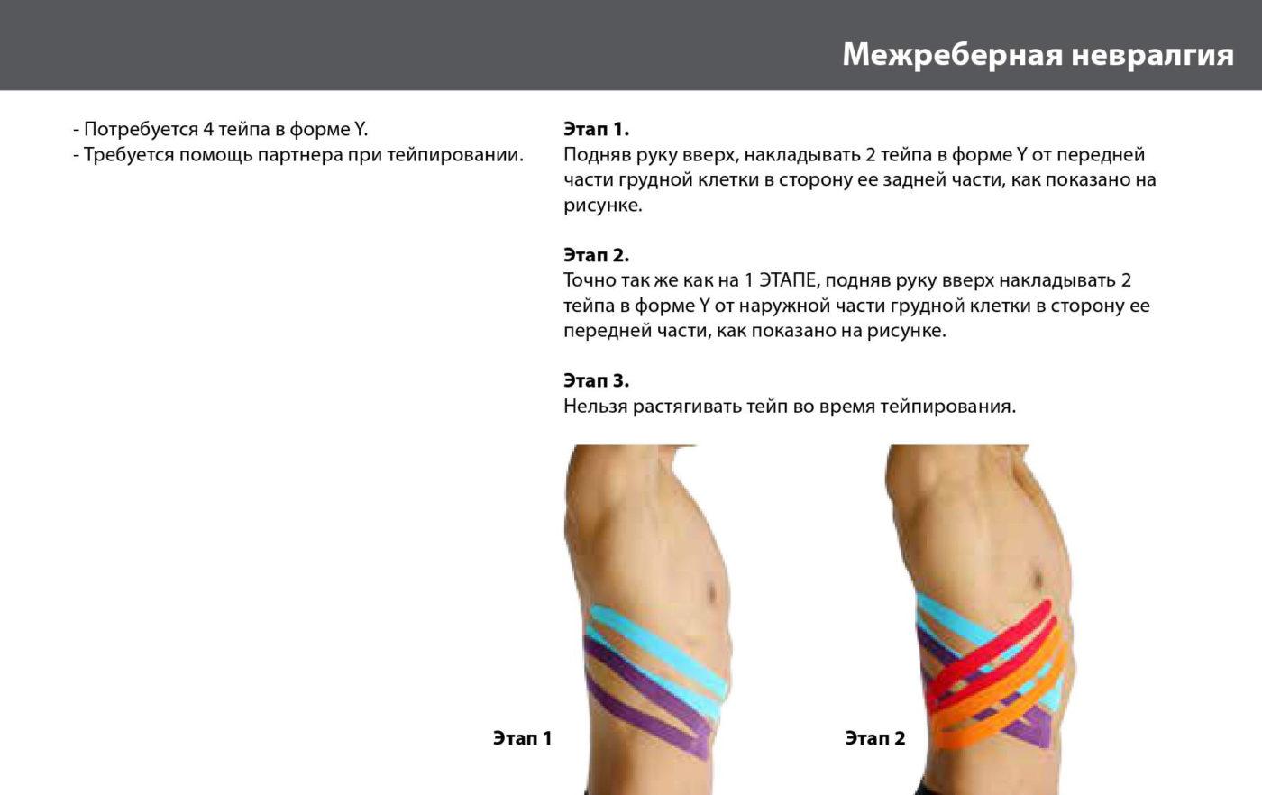 Межреберные ревматические боли в суставах лечение мышцы плечевого сустава в тонусе