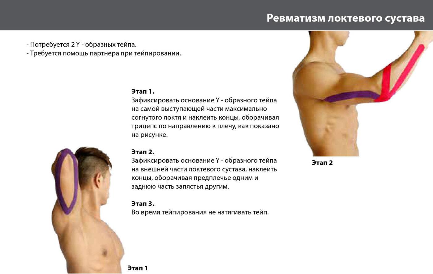 Как укрепить локтевые суставы гоноартроз коленных суставов 1 степени
