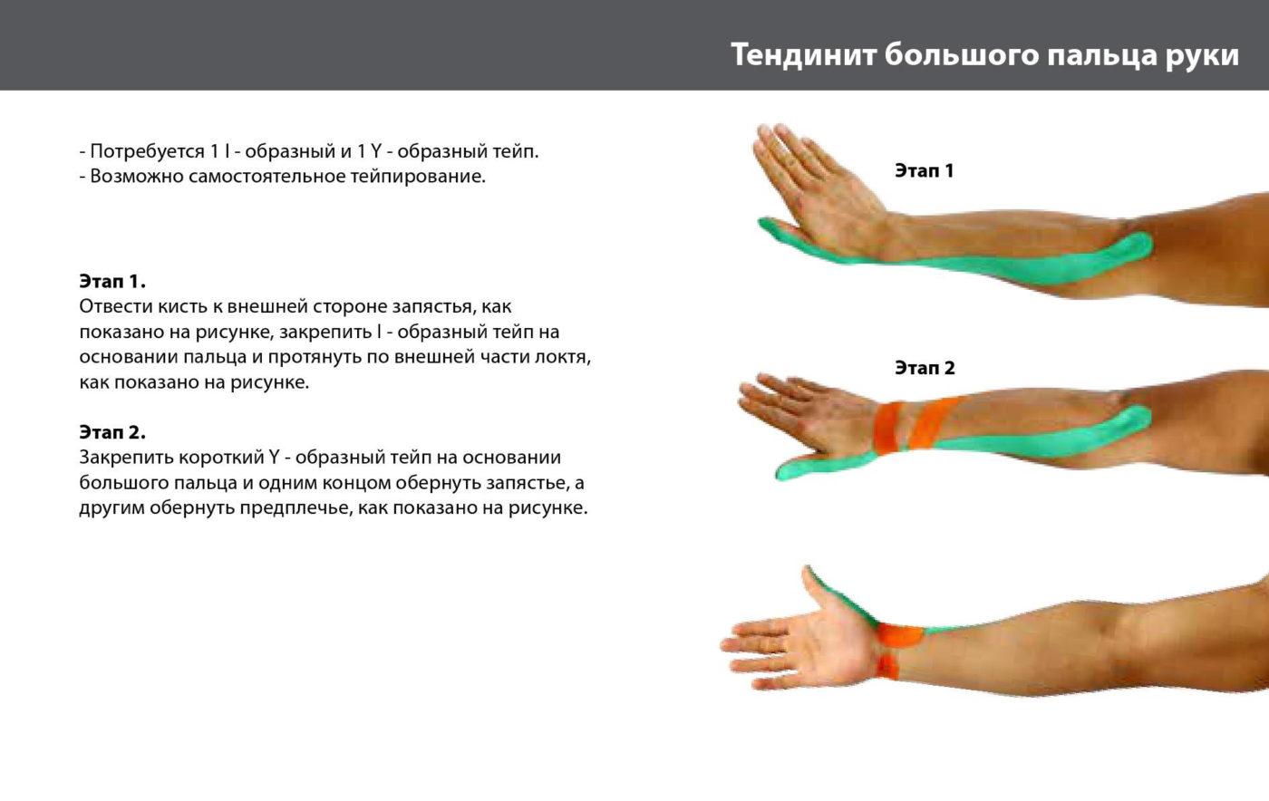 Как зафиксировать сустав большого пальца руки анатамия плечевого сустава
